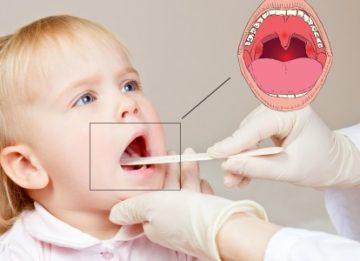 Характерные симптомы хронического тонзиллита и способы его лечения